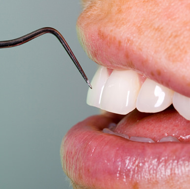 Parodonthosebehandlung - Behandlung bakterieller Erkrankungen