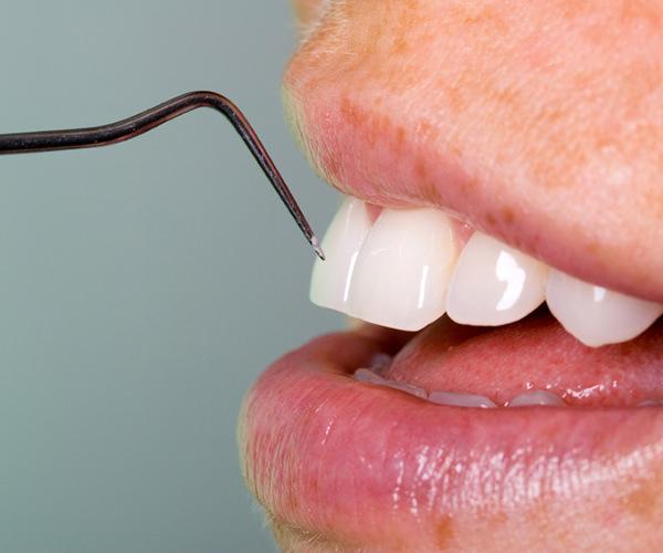 Behandlung Parodontose
