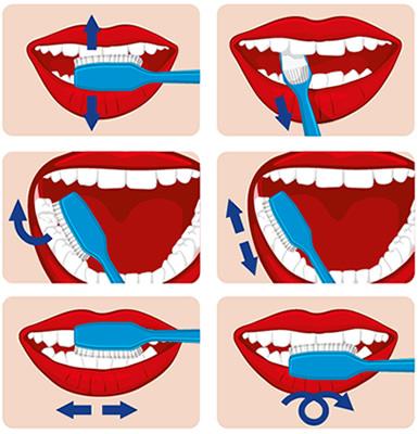 Anleitung zum richtigen Zähneputzen