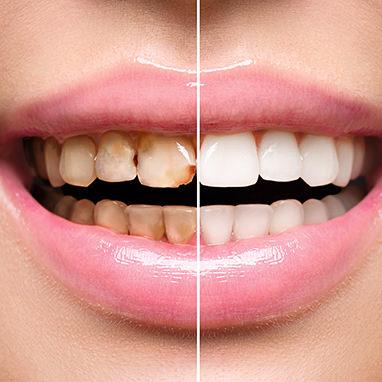 Vorher Nachher Vergleich bei Zähnen