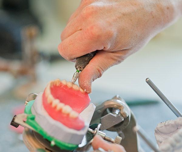 Zahnherstellung