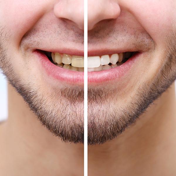 Weiße Zähne Vorher-Nachher Vergleich